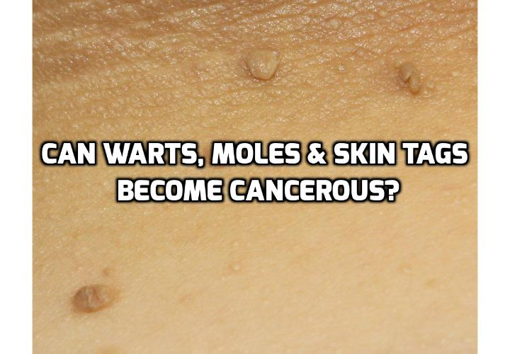 Can Warts, Moles & Skin Tags Really Cause Cancerous Growth? Moles may develop into a cancerous growth. It is therefore important to take appropriate care of any changes that can occur to any mole. Read on to learn how to identify cancerous growth.