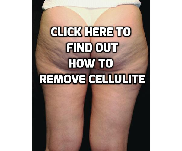 What are the best ways to remove Cellulite at home? While cellulite can be very stubborn, you can remove cellulite with some lifestyle changes by exercising, having the right diet and also with some effective home cellulite treatment. Read on to find out more.