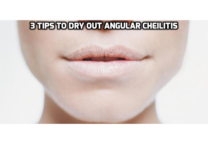 3 Tips to Dry Out Angular Cheilitis - If you are looking for solutions which will make Angular Cheilitis go away in a short period of time and without causing any more pain here are 3 tips you can use to dry out angular cheilitis at home.