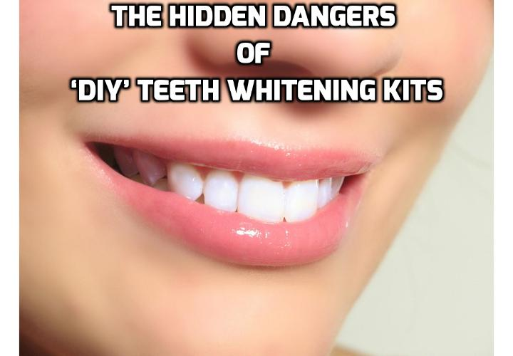 What are the Downsides of Teeth Bleaching? Here are some hard facts you should know about teeth bleaching for dental health and why it is better to opt for a natural teeth whitening solution which the author is going to show you how in her Teeth Whitening 4 You program.