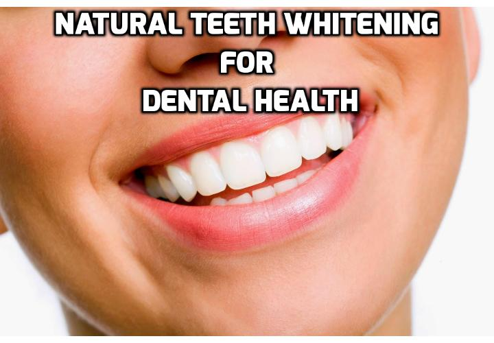 Why Natural Teeth Whitening is the Best Way to Whiten Teeth? Whether you use a DIY kit or have teeth whitening done at the dentist if you use a product or have a treatment done that doesn't use natural elements to whiten teeth you could get hurt. Read on to find out how best to whiten teeth safely and naturally.