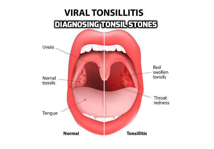Here is What You Should Know about Diagnosing Tonsil Stones - Tonsil stones, also known as tonsilloliths, are formed when decaying material is trapped in the crevices of your tonsils. Most people have small tonsil stones that do not cause noticeable symptoms. As a result, this condition is often discovered incidentally via X-rays or CT scans during the process of diagnosing tonsil stones.