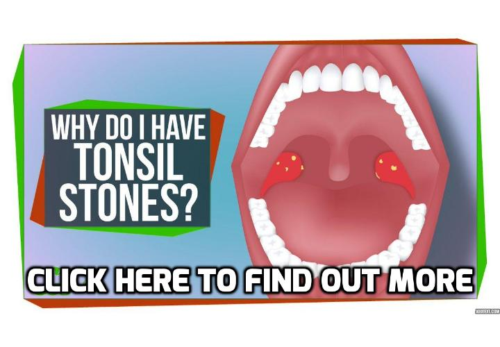 Are there Any Link between Genetics and Having Tonsil Stones? Individuals who suffer from tonsil stones often wonder where their condition came from. Despite many years of studies, clinical researchers have not yet been able to identify the exact cause of having tonsil stones. However, several contributing factors such as pre-existing health conditions and possible genetic influences seem to influence a person's likelihood of having tonsil stones.