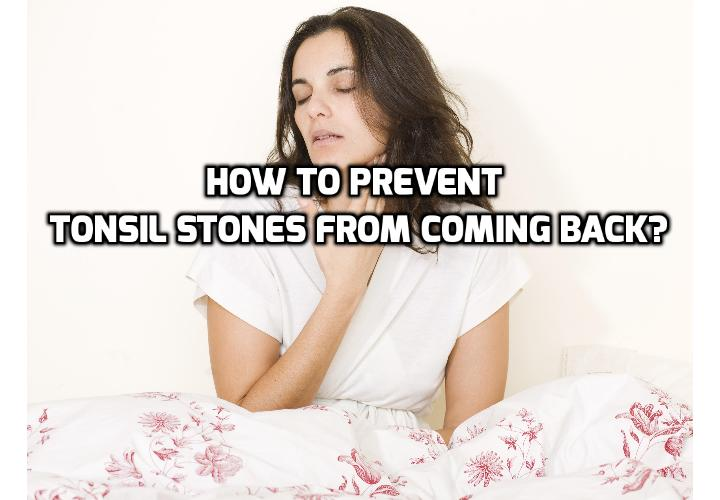 How to Really Prevent Persistent Tonsil Stones? Persistent tonsil stones occur when food particles and other forms of debris accumulate on the surface of your palatine tonsils. These lymphatic organs are located on either side of the back of your throat. They are responsible for filtering lymphatic fluid and for trapping incoming pathogens such as viruses, bacteria, and fungi.