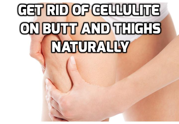 Revealing Here 8 No Risk Ways to Remove Cellulite - Smooth and tight thighs without cellulite are what many women today. Cellulite can appear when you don't notice. Read on here to learn the 8 ways to remove cellulite naturally.