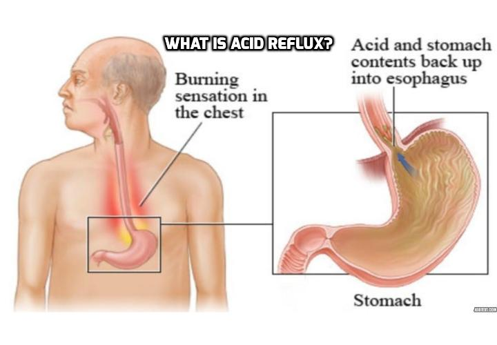 What Is Acid Reflux? Acid reflux disease, also known as gastro-esophageal reflux disease, or GERD, occurs due to the coexistence of two medical conditions. Read on to find out more.