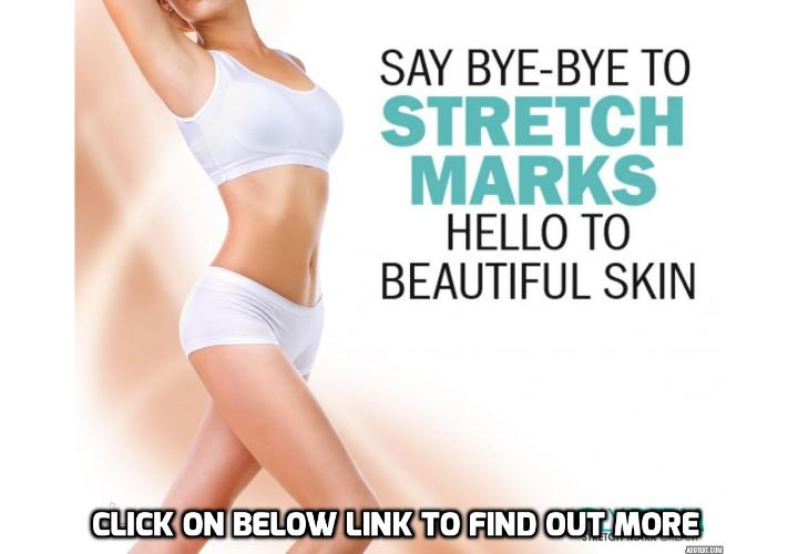 The Only Real Way to Get Rid of Stretch Marks - To get rid of stretch marks may seem like a daunting, never-ending story. In some ways, it can be. As much as we hate to be the ones to break it to you, there's no sure-fire way to erase them. But there's no need to lose hope.