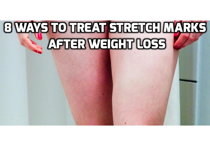 Revealing Here the 8 Best Ways to Treat Stretch Marks After Weight Loss - In this post, I will discuss about how best to treat stretch marks after weight loss. You can find here 8 ways you can consider to treat stretch marks after weight loss and reduce their appearance. You can also watch a video clip here on how to get rid of stretch marks and loose skin after weight loss.