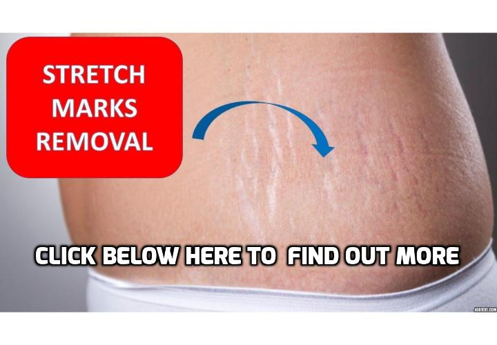 How Can I Really Remove Stretch Marks? This post will talk about everything you need to know in trying to look for ways to remove stretch marks. The most expensive ways to remove stretch marks is not necessarily the most effective. Some methods to remove stretch marks will work better than others, depending on individuals.