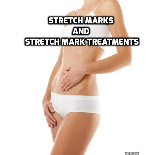 What are the Stretch Mark Treatments to Consider if You Have Stretch Marks? This post will talk about how do stretch marks occur, who are most vulnerable to have stretch marks, reasons why you have stretch marks, which areas of the body that are likely to have stretch marks, the various stretch mark treatments, their pros and cons. There is a video clip about how laser stretch mark removal is being done.